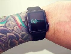 Apple Watch non ama i tatuaggi?